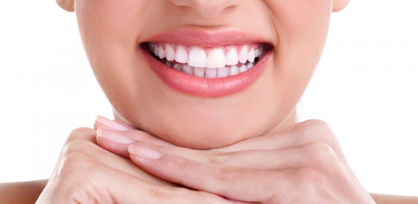 Teeth Whitening Kit Melbourne